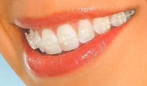 Сколько стоит установка брекетов на зубы
