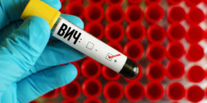 Сколько стоит анализ крови на ВИЧ